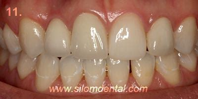 beautiful teeth  concept dental implant clinic bangkok