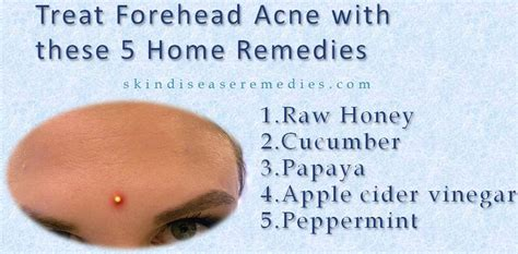 acne home remedies how to get rid of clogged pores on forehead how to get rid