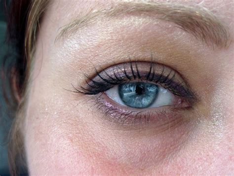 Reasons For Eye Circles And Puffiness by What Causes Eye Circles And Puffiness Dermabout