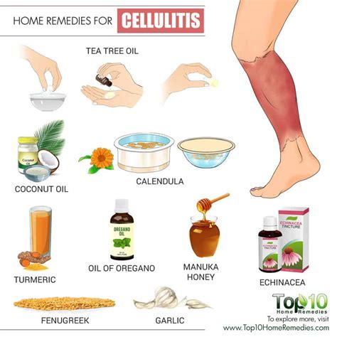 best antibiotics for cellulitis home remedies for cellulitis top 10 home remedies