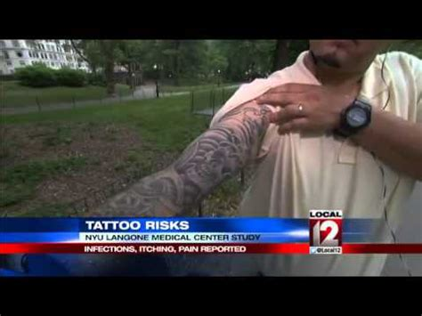 tattoo removal itching risks infections itching reported