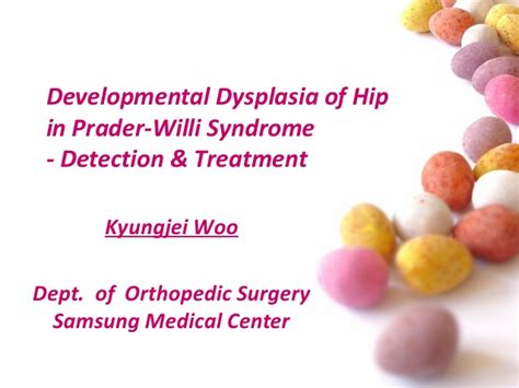 developmental dysplasia of hip ddh in prader willi