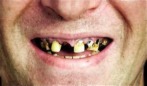 worst teeth 171 dental fear central
