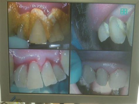 removing plaque from s teeth teeth plaque removal pictures
