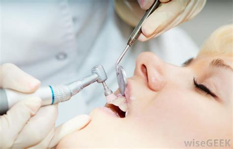 what should i expect from a dental cleaning with pictures