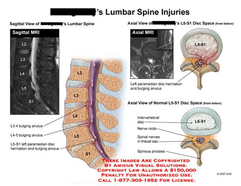 lumbar 4 and 5 diagram amicus illustration of amicus injury lumbar spine disc