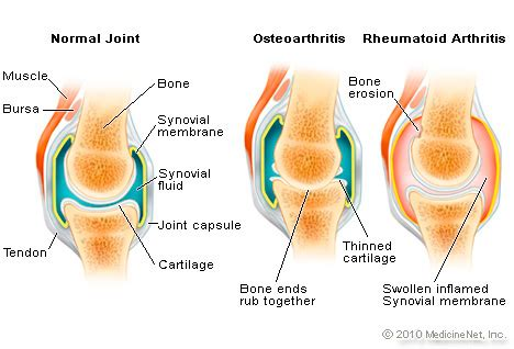 Rã Sumã Definition Illustration Pictures Of Musculoskeletal Problems Osteoarthritis