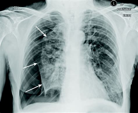 imagenes radiograficas pdf neumot 243 rax espont 225 neo art 237 culos intramed