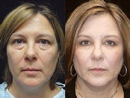 tattoo removal bloomington il 10 best our site images on clinic a