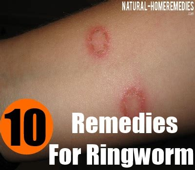 10 herbal remedies for ringworm herbal treatments for