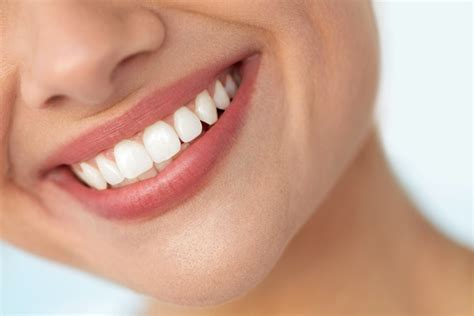 dental smile makeover south east london  finance