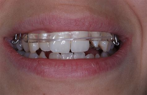 inman aligners cleveland cosmetic dental implant clinic