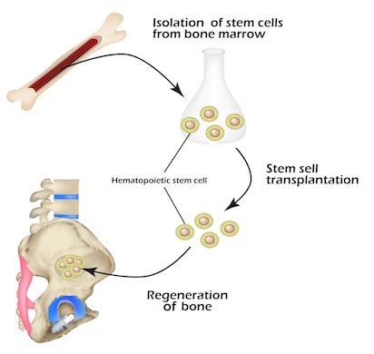stem cell diagram stem cell therapy prestige sports medicine