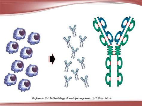 cadenas ligeras de mieloma mieloma m 250 ltiple