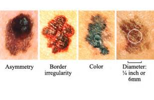 There are several different types of melanoma but when inspecting
