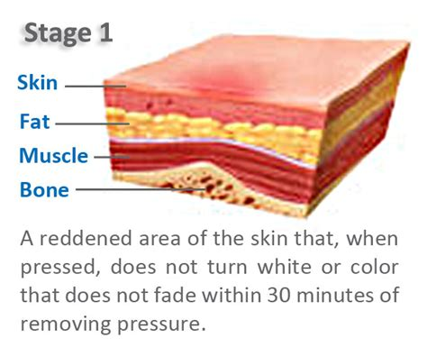 Bed Sores Stage 1 by Stage 1 Pressure Ulcer Pictures To Pin On