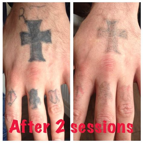 Tattoo Healing Missing Ink | the missing ink laser tattoo removal private medical