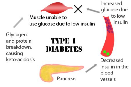diabetes mellitus type 1 diabetes mellitus brittle
