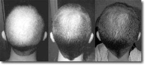 rogaine success photos propecia rogaine hairloss before after photos greg