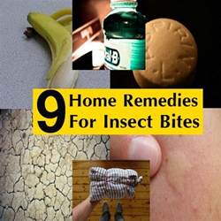 home remedies for insect bites 9 surprising home remedies for insect bites and stings