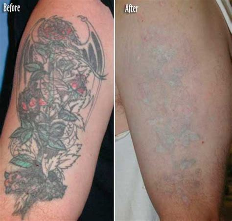 tattoo removal swelling removal