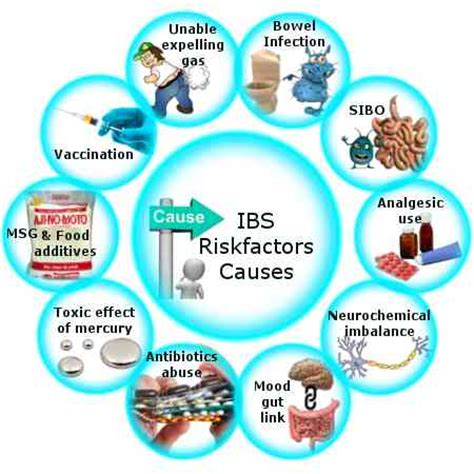 Does Anxiety Cause Stools by Ibs Risk Factors Causes Gds