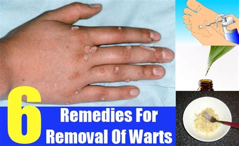6 promising remedies for removal of warts search home remedy