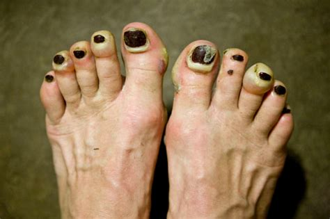 several toenails look skin color under them bad feet fixing your feet blog