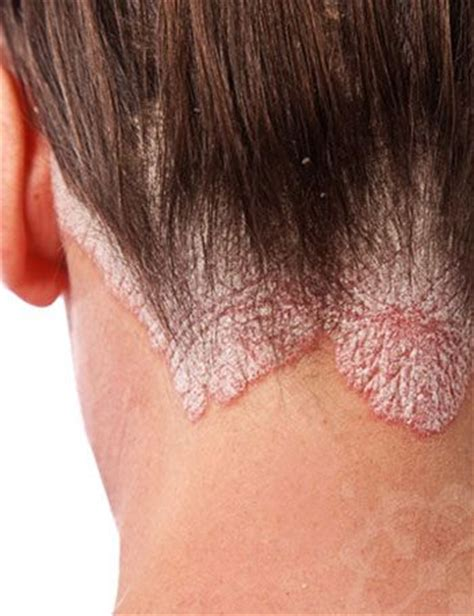 Can Hair Dryer Cause Dandruff get scalp psoriasis remedies the and cases