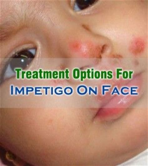 best treatment for impetigo 17 best images about skin diseases on candida