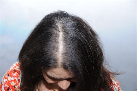 alopecia hair loss in women fue patient 6