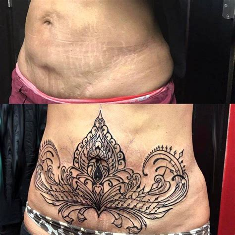 tattoo cover up prices tummy tuck scar tattoo cover up pics 61 187 tummy tuck