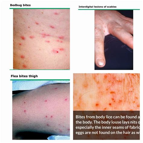 scabies vs bed bug bites faq body lice vs scabies vs bedbugs vs flea viral