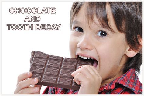 chocolate tooth decay west los angeles dental care