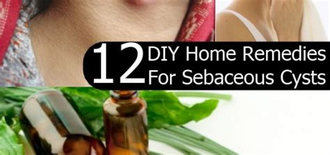 diy home remedies for sebaceous cysts