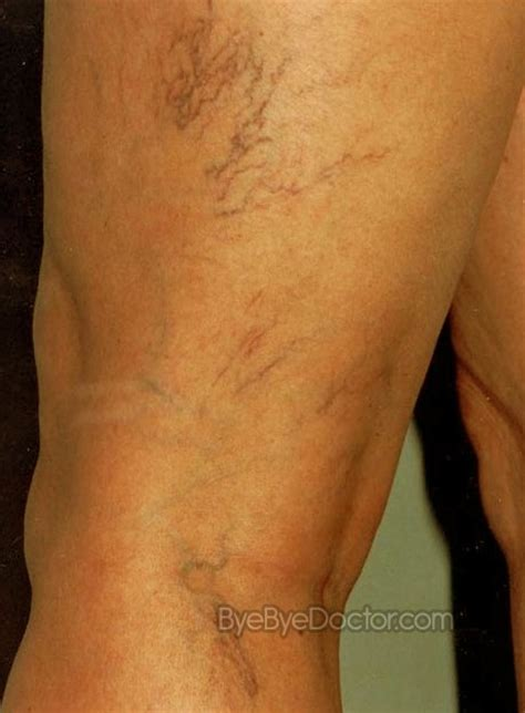 varicose veins treatment symptoms causes pictures