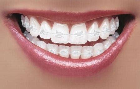 braces making  comeback huda beauty makeup