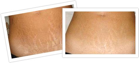 laser treatments ukbefore amp after stretchmark reduction