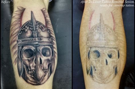 tattoo cover up after laser removal and pmu removal with laser