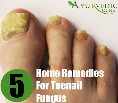 toenail fungus home remedies treatments and cure
