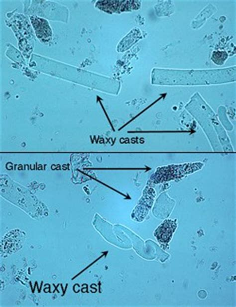 urinary patterns quizlet waxy and granular casts in urine eclinpath