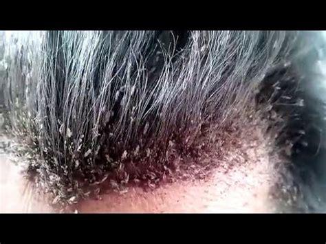 Pembasmi Kutu Rambut Kutu Out cara menghilangkan kutu rambut dan telurnya dengan cepat 1