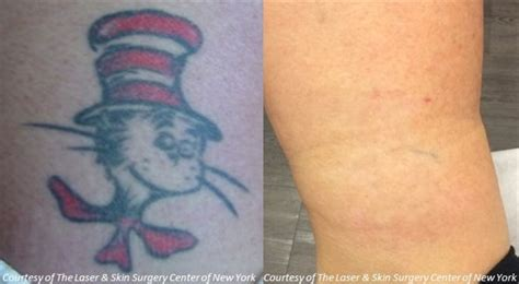 surgical tattoo removal before and after laser removal nyc laser skin surgery center of