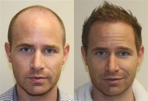 hair transplant stories and patient testimonials anders testimonials reviews about dr brett bolton