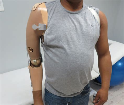 understanding prosthetic arms and arm prostheses
