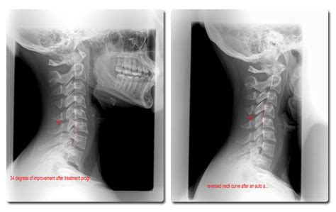 Cervical Kyphosis Pillow by Cervical Kyphosis Pictures