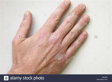 macro closeup human palm skin high stock photo 32845867 psoriasis stock photos psoriasis stock images alamy