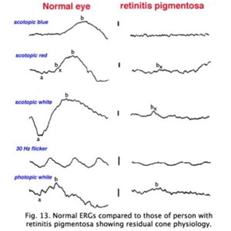 normal pattern erg the electroretinogram and electro oculogram clinical