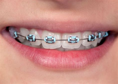 color bands for braces coloured braces langley orthodontics bc