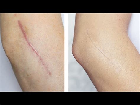 tattoo cover up keratosis pilaris how to cover dark scars on legs with makeup makeupink co